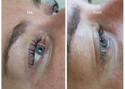 Wimpers voor en na 2